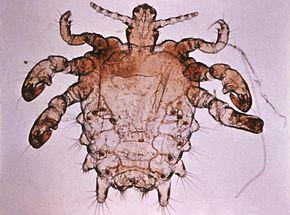 290px-Pthius_pubis_-_crab_louse